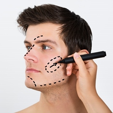 A man having cosmetic surgery lines drawn on his face