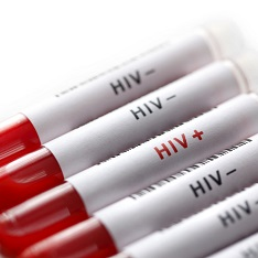 Medical vials with the letters HIV inscribed